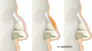 Corriger la bosse osseuse et cartilagineuse par ostéotomie.