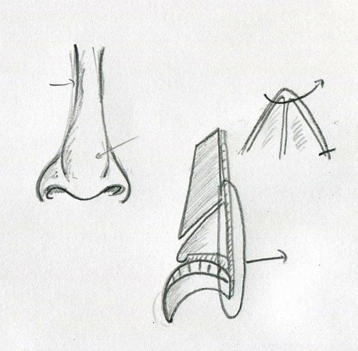 Dessins préparatoires de rhinoplastie width=